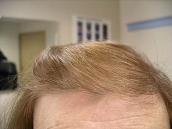 client 4 months