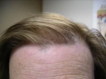 client 8 months